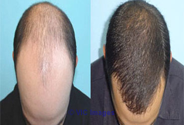 Wigs in Delhi, Hair Wigs in Delhi, Hair Loss/ Fall Treatment in Delhi calgary