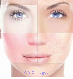 Best skin care products for redness in Alberta calgary