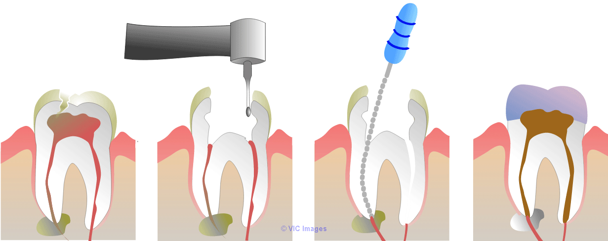 Root Canal Treatment for Infected Tooth calgary