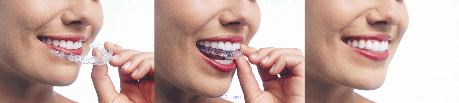 A Straighter Smile with Invisalign calgary
