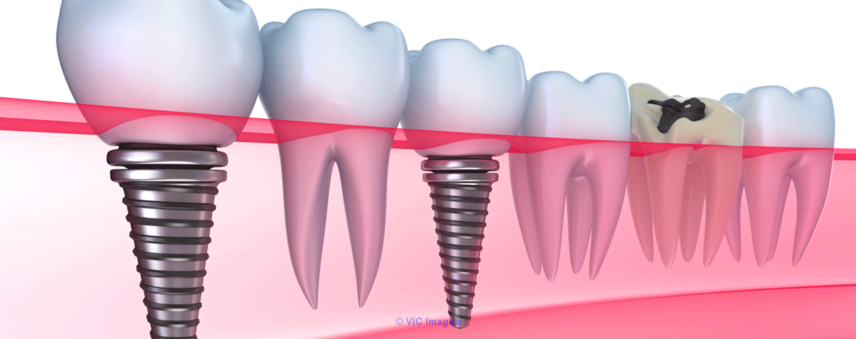 Dental Implant Services in Calgary calgary