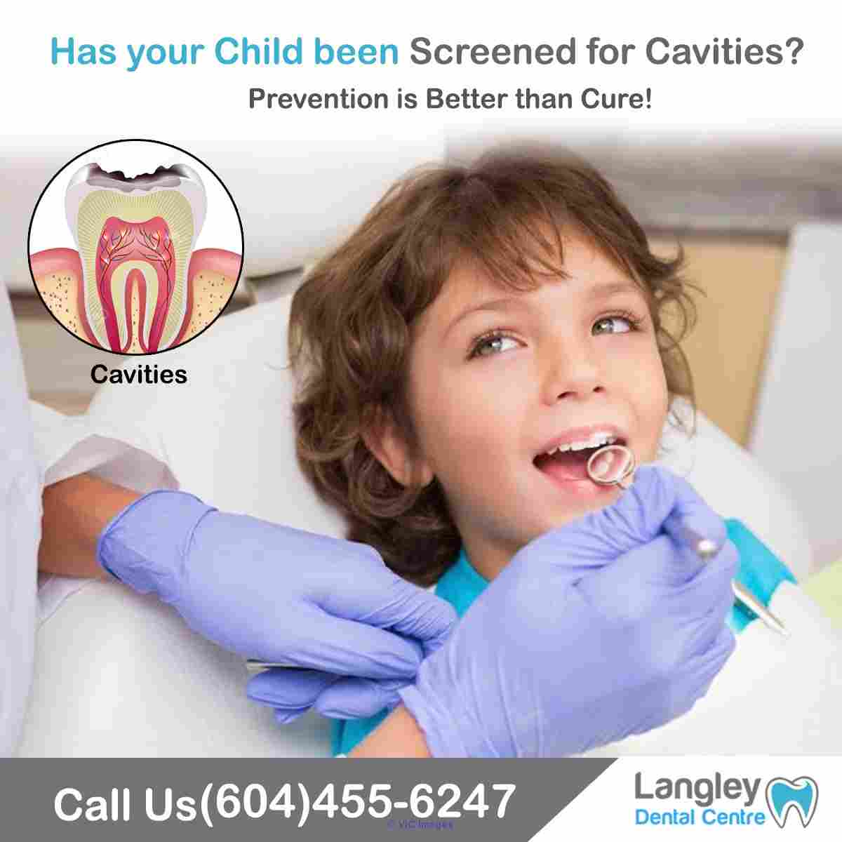 Root Canal Dentist - Langley BC Dentist - Dentist Langley BC calgary